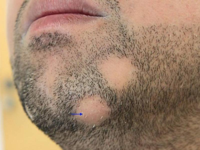 alopecia areata baard